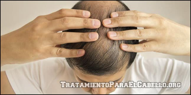 Miel para la caída del cabello